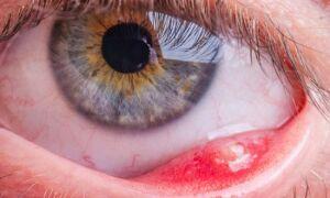 Chalazion — причины, симптомы, лечение