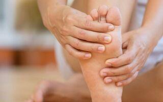 Подагра (подагра) — причины, симптомы и лечение