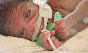 Эти дети весом менее 1 кг. Ловить фотографии недоношенных детей сердцем в первые дни их жизни